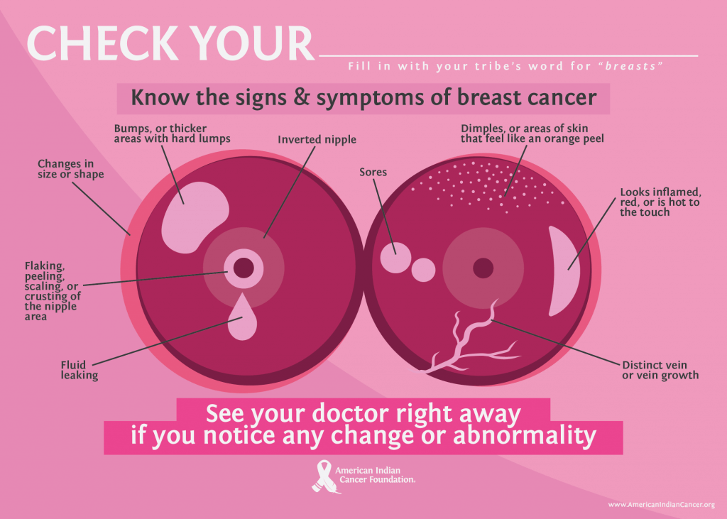 Check Your Breast